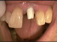 Implantat mit Keramikaufbau zur Aufnahme einer Vollkeramischen Krone